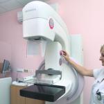 Polo grupacija i Udruženje Ženo, majko, sestro pokreću akciju kupovine mamografa, pogledajte kako možete pomoći